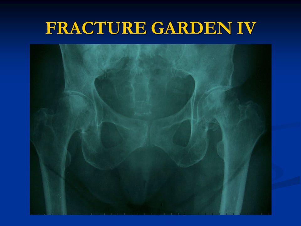 FRACTURE GARDEN IV