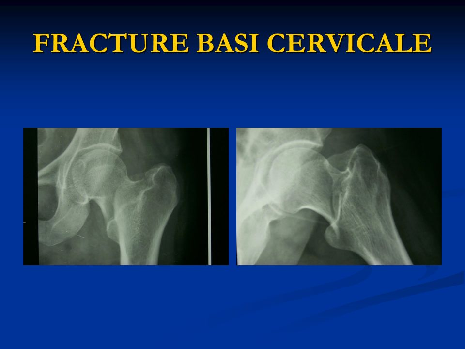 FRACTURE BASI CERVICALE