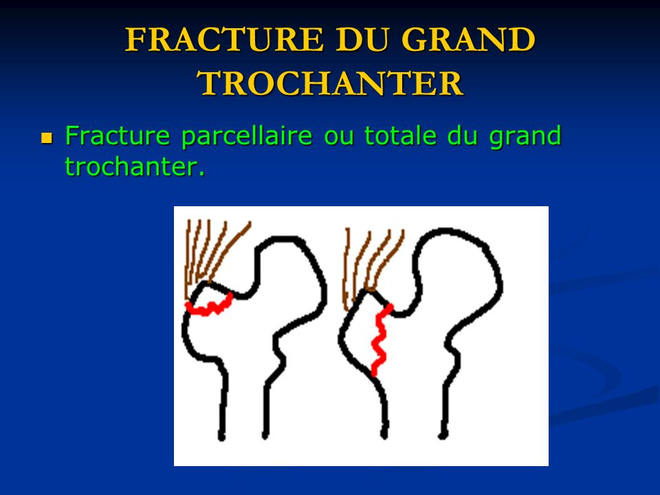 FRACTURE DU GRAND TROCHANTER