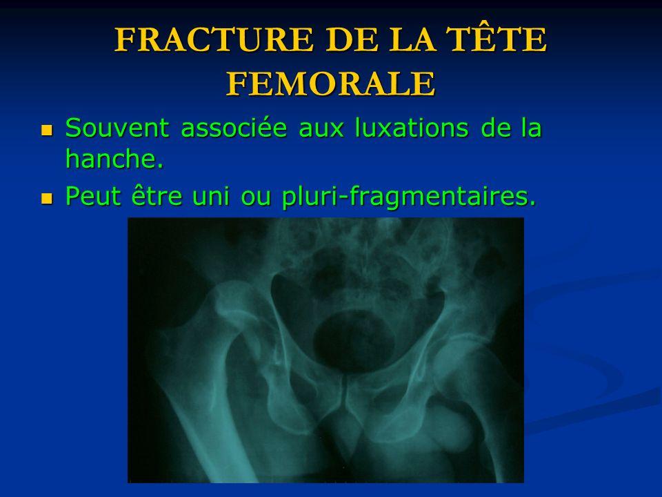 FRACTURE DE LA TÊTE FEMORALE