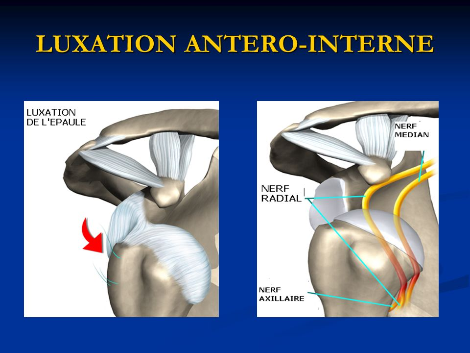 LUXATION ANTERO-INTERNE