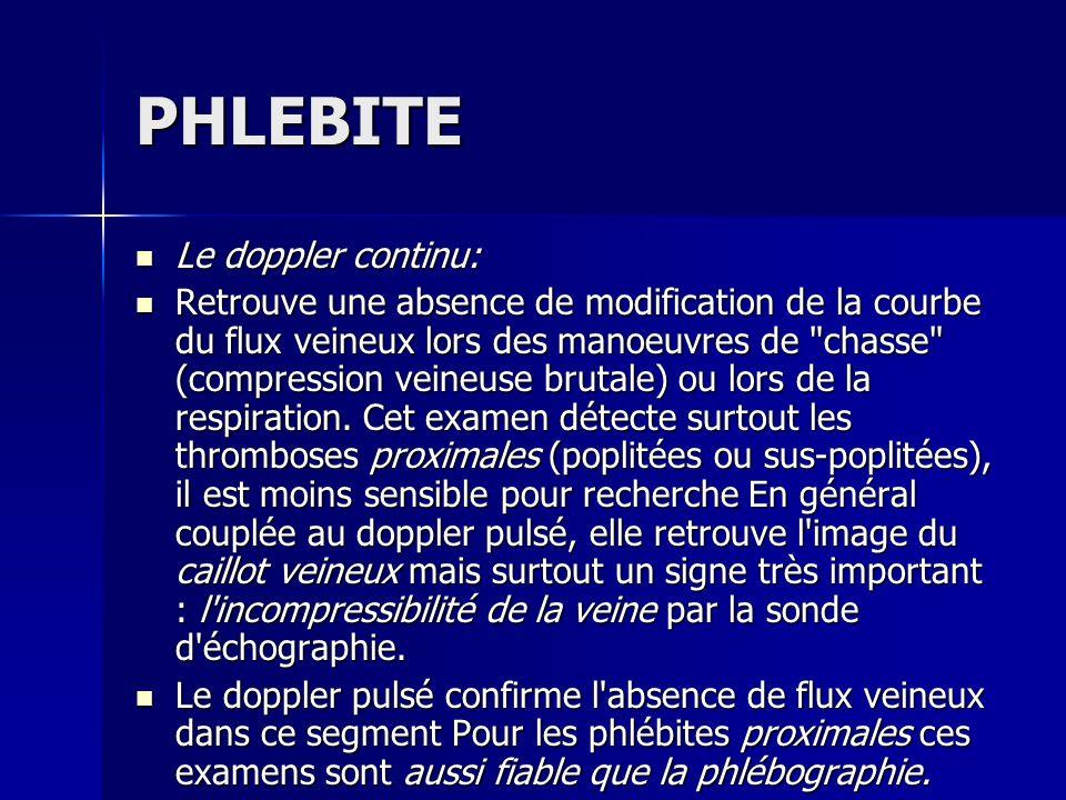 PHLEBITE Le doppler continu:
