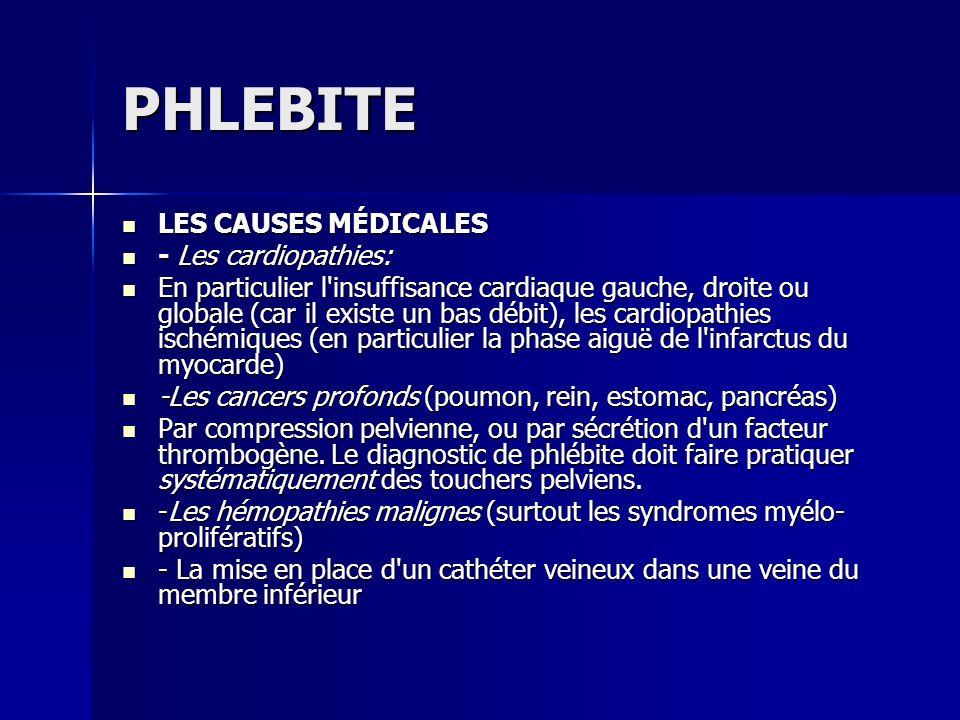 PHLEBITE LES CAUSES MÉDICALES - Les cardiopathies: