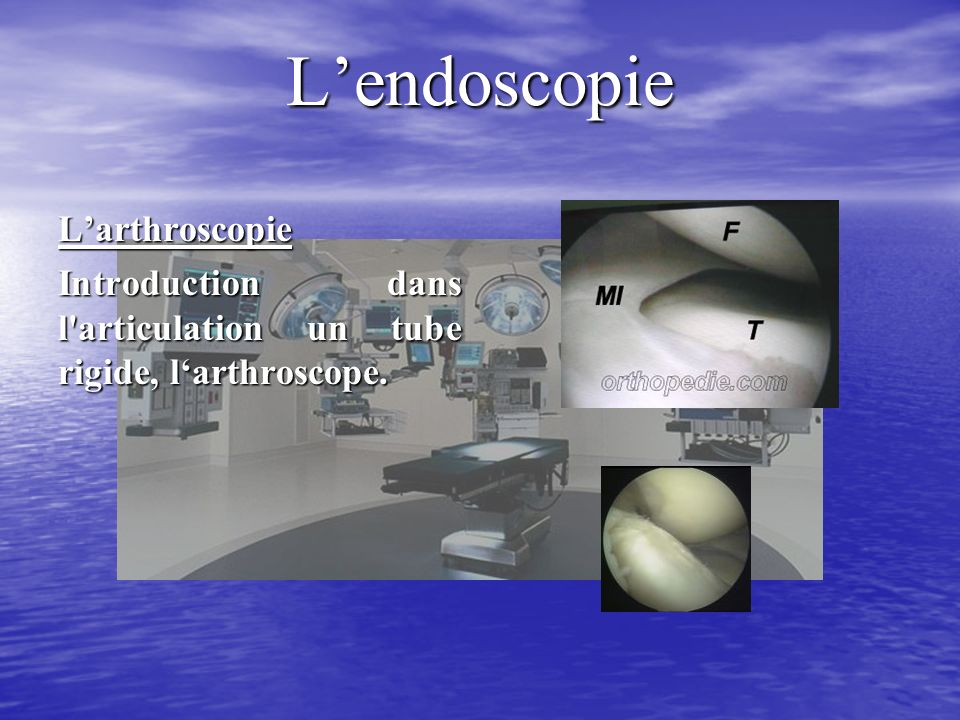 L'endoscopie L'arthroscopie
