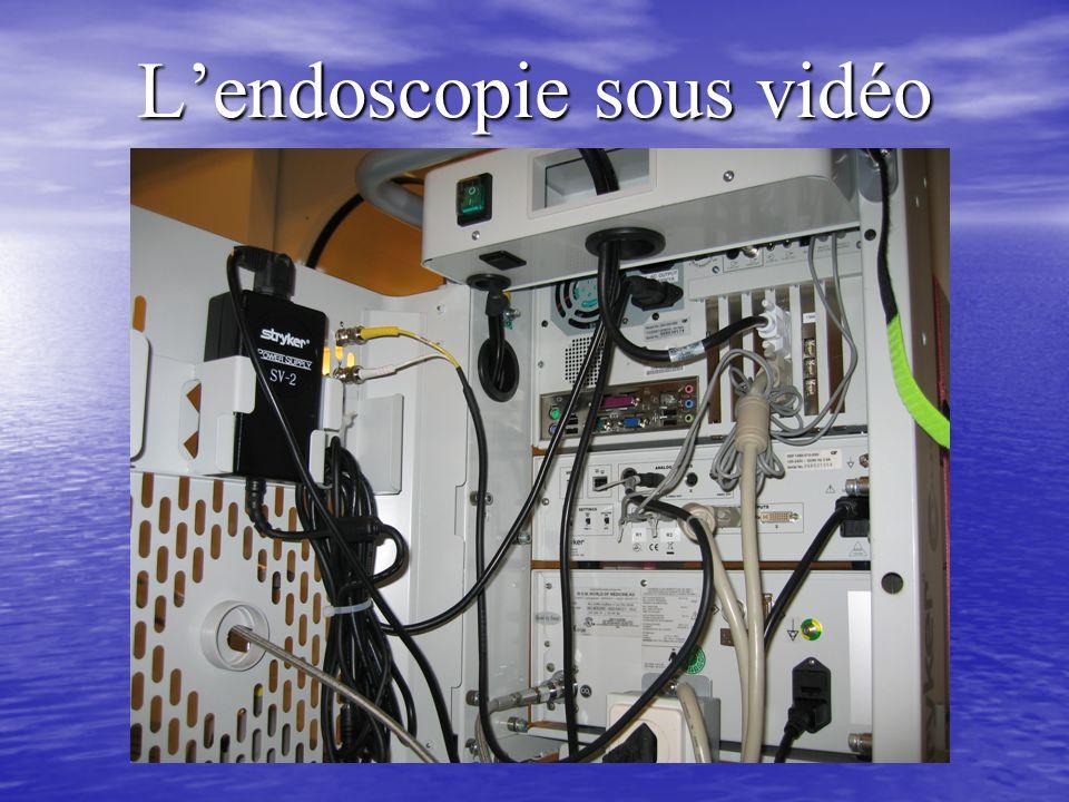 L'endoscopie sous vidéo