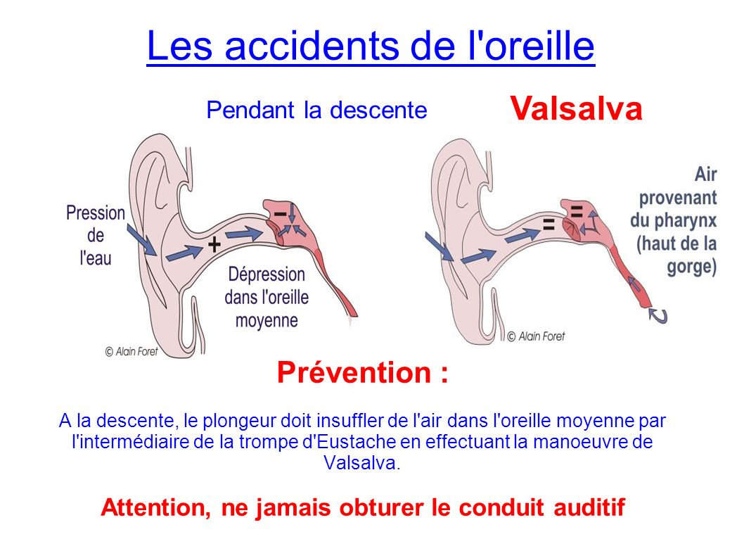 Les accidents de l oreille