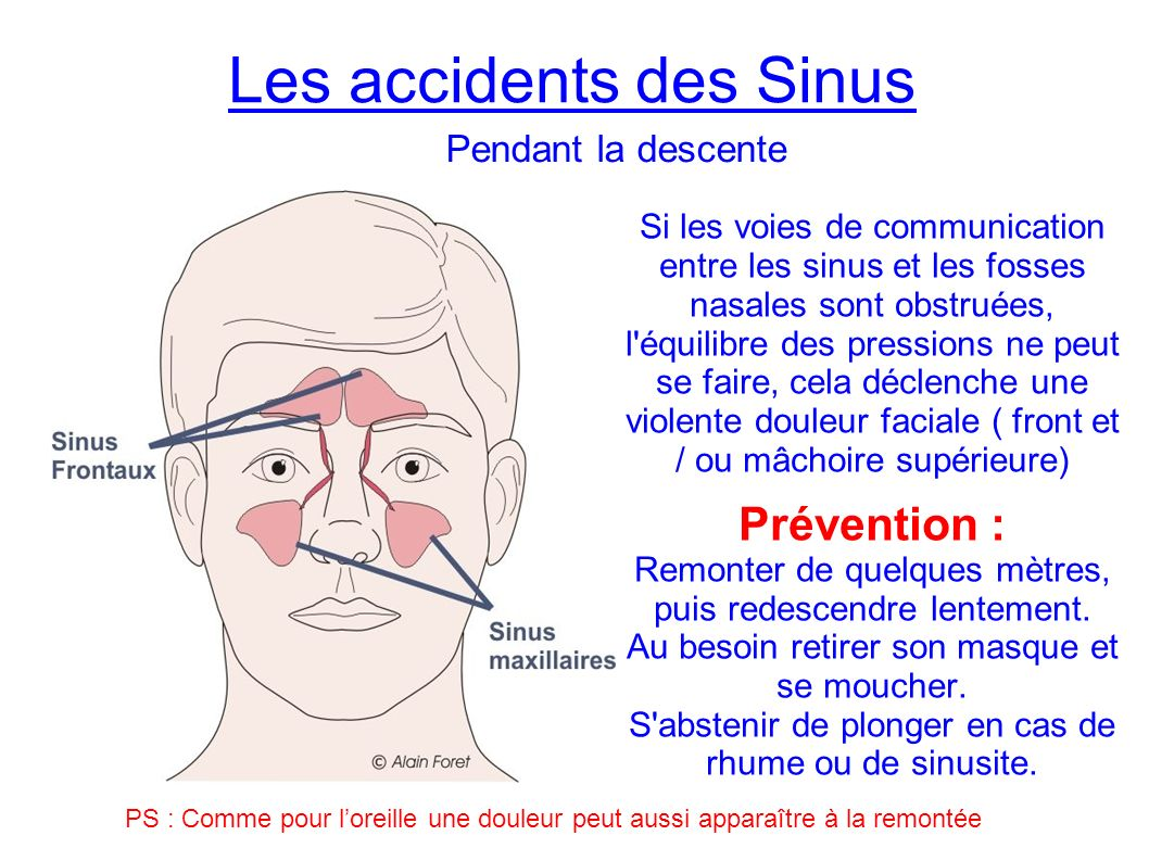 Les accidents des Sinus