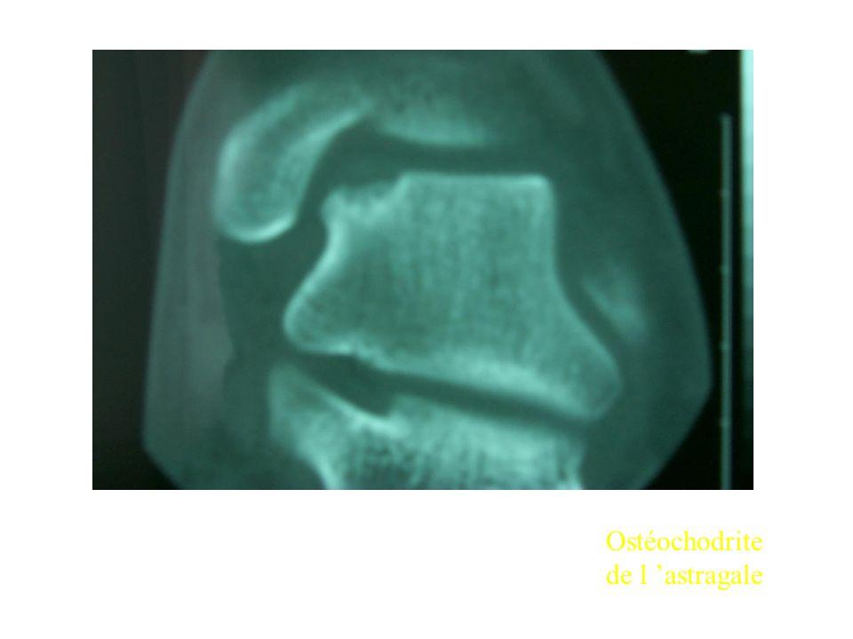 Ostéochodrite de l 'astragale