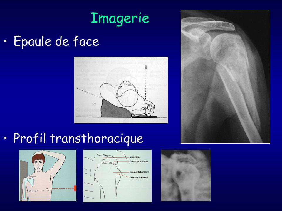 Imagerie Epaule de face Profil transthoracique