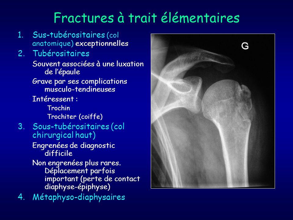 Fractures à trait élémentaires