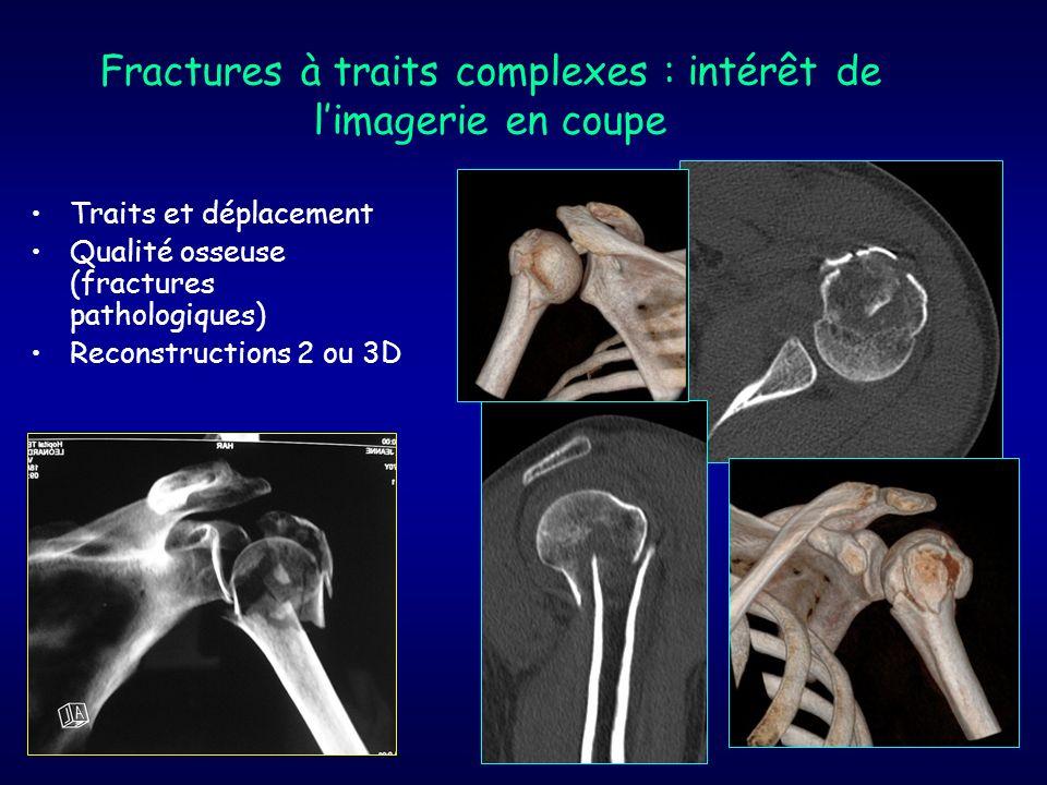 Fractures à traits complexes : intérêt de l'imagerie en coupe