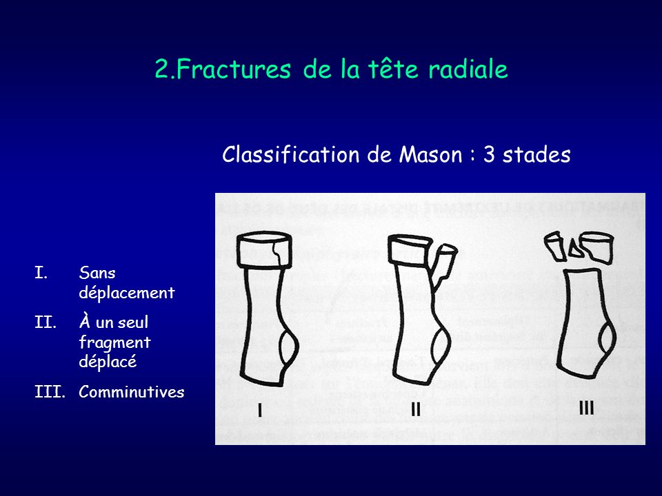 2.Fractures de la tête radiale
