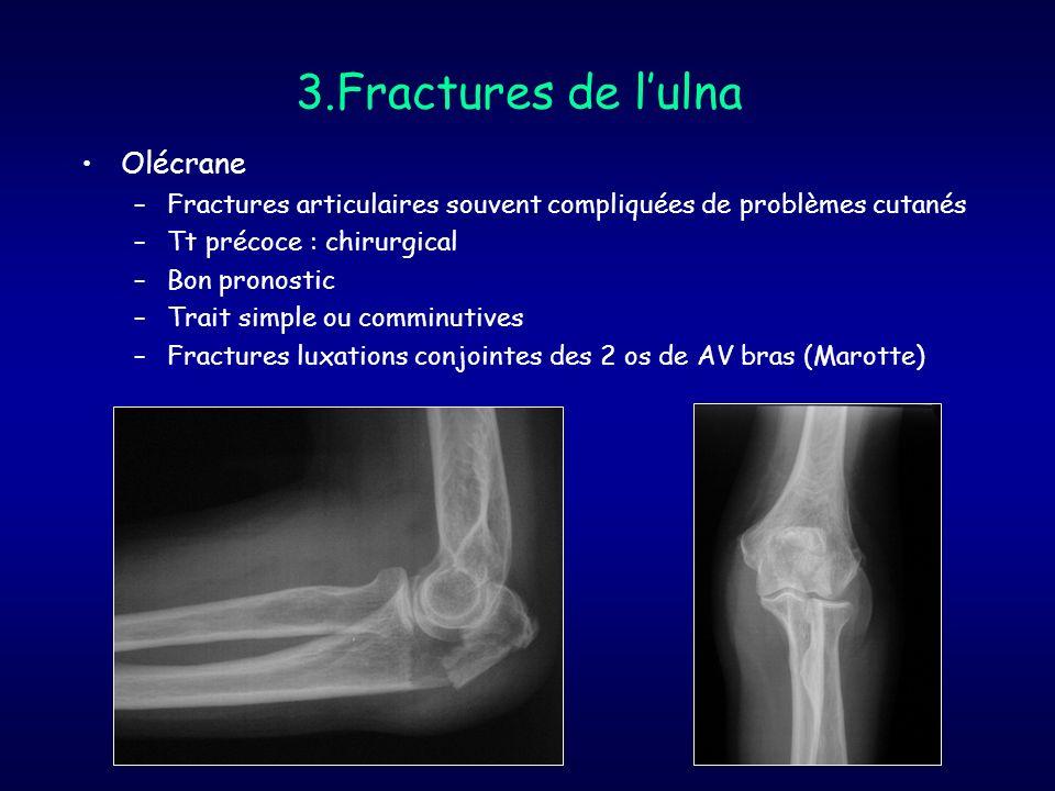 3.Fractures de l'ulna Olécrane