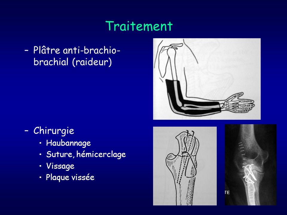 Traitement Plâtre anti-brachio-brachial (raideur) Chirurgie Haubannage
