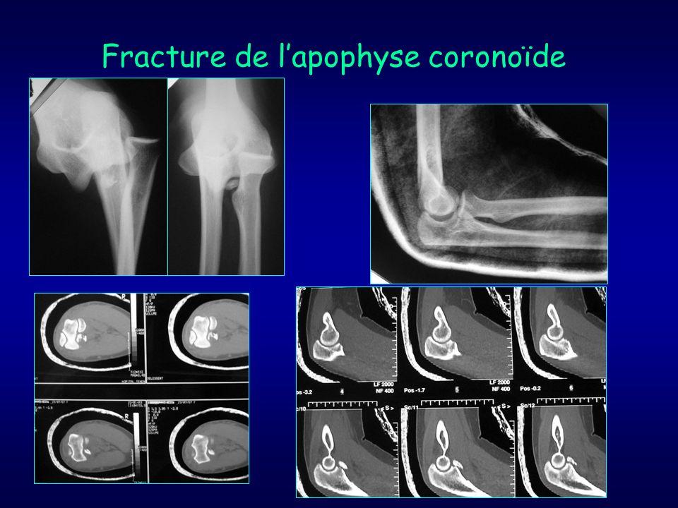 Fracture de l'apophyse coronoïde