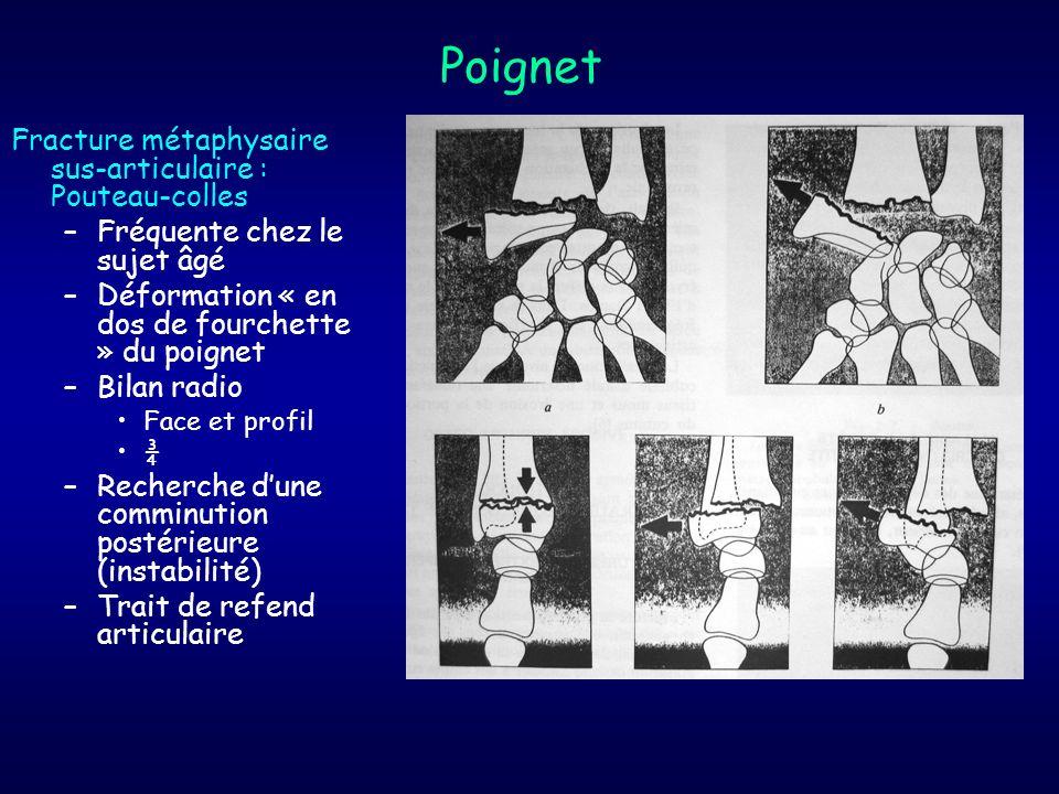 Poignet Fracture métaphysaire sus-articulaire : Pouteau-colles