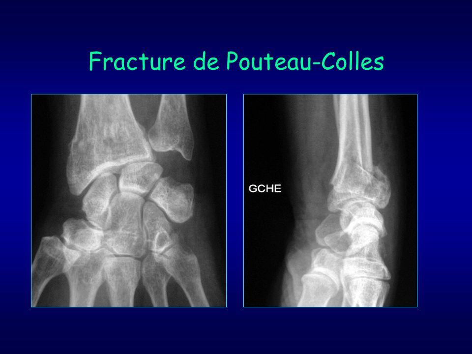 Fracture de Pouteau-Colles