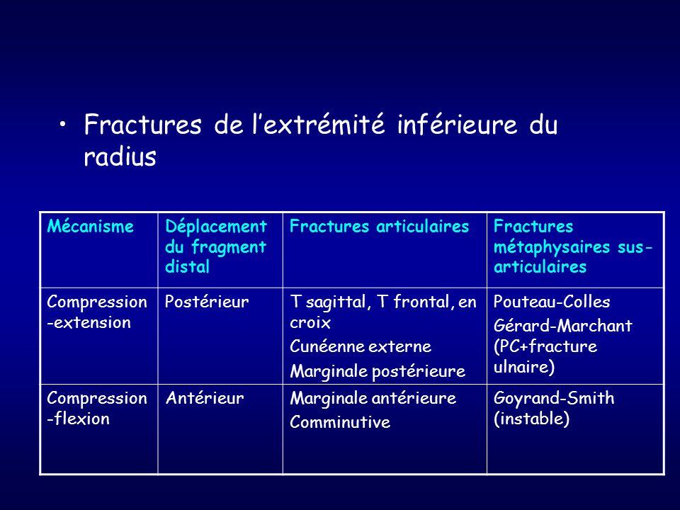 Fractures de l'extrémité inférieure du radius