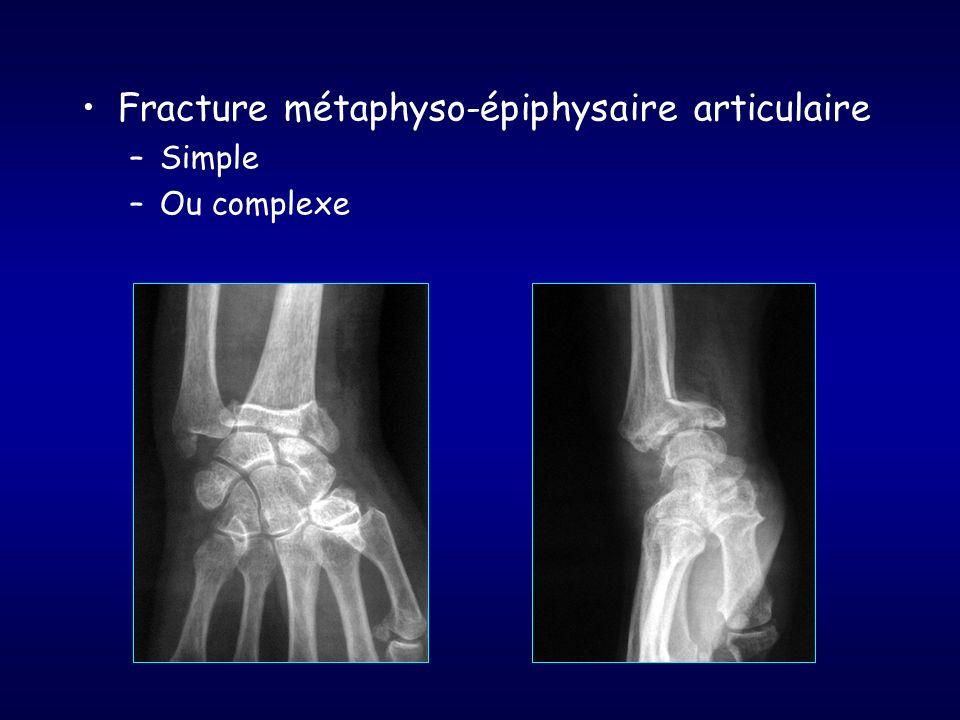 Fracture métaphyso-épiphysaire articulaire