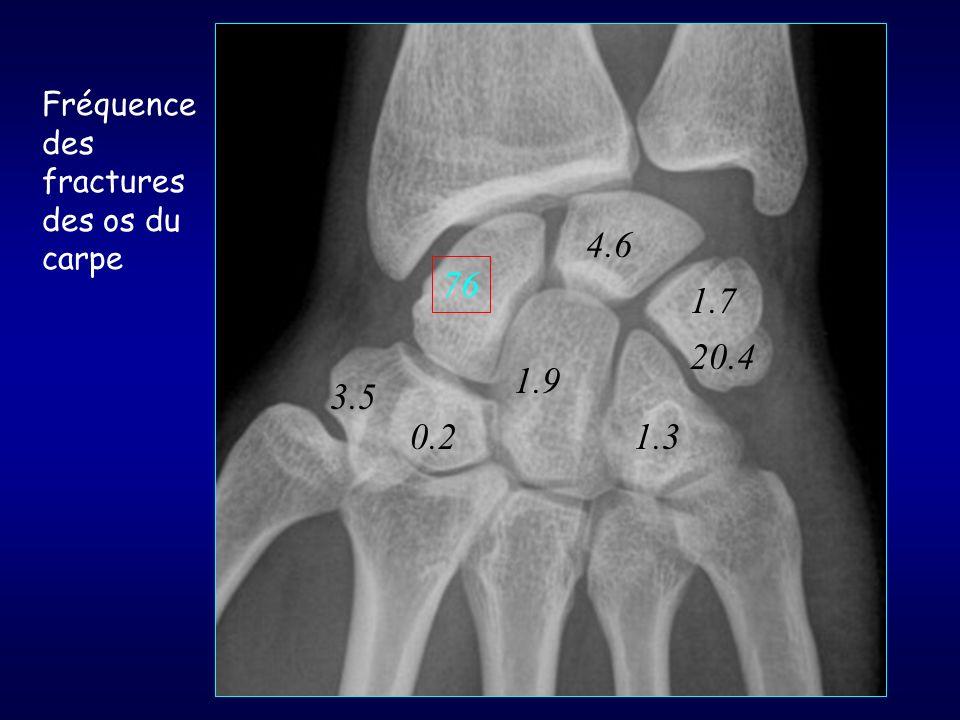 Fréquence des fractures des os du carpe