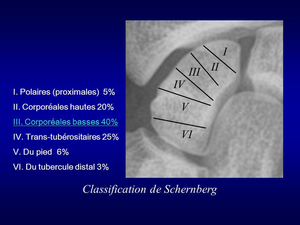 Classification de Schernberg