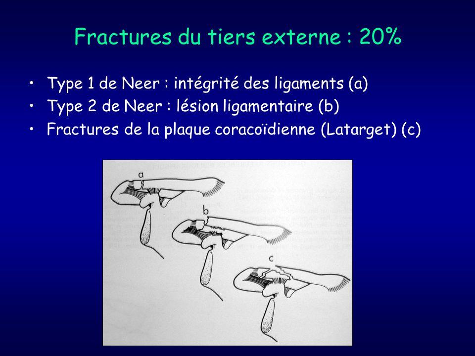 Fractures du tiers externe : 20%