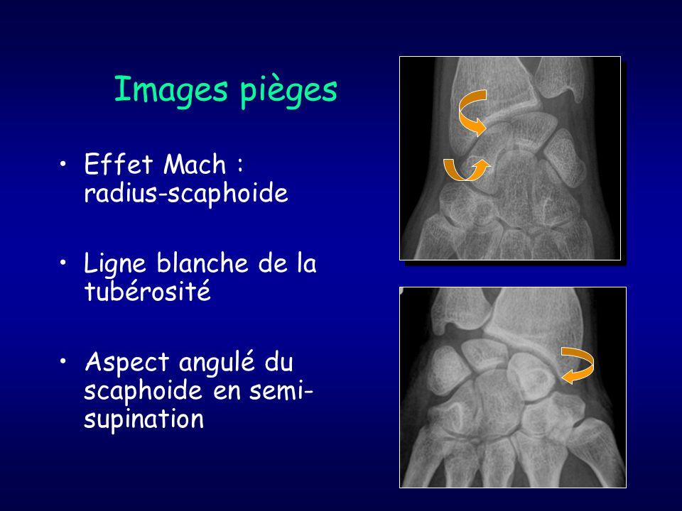 Images pièges Effet Mach : radius-scaphoide