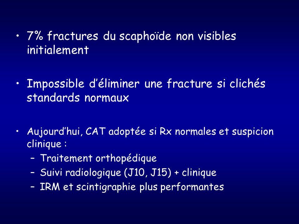 7% fractures du scaphoïde non visibles initialement