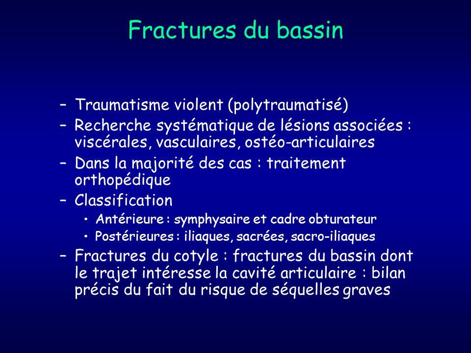 Fractures du bassin Traumatisme violent (polytraumatisé)