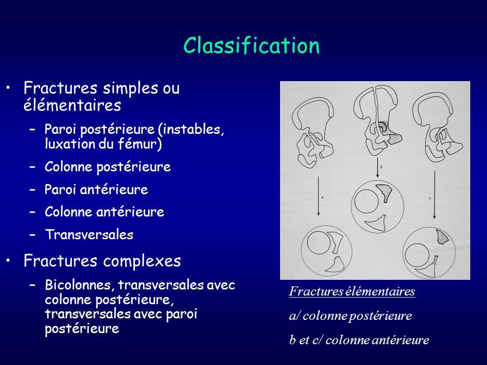 Classification Fractures simples ou élémentaires Fractures complexes