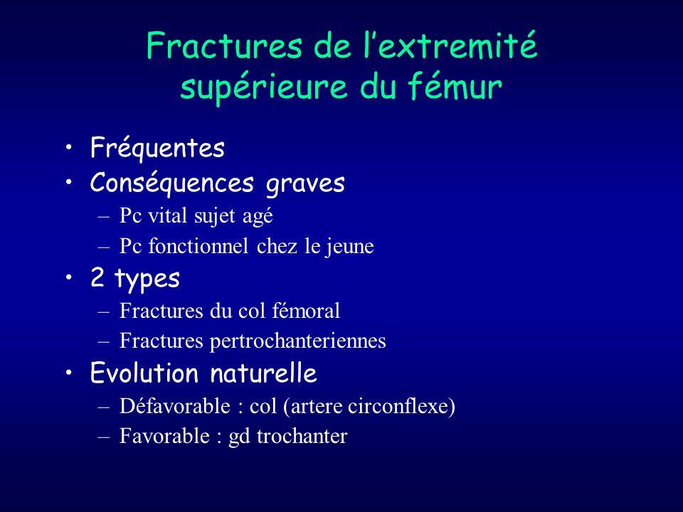 Fractures de l'extremité supérieure du fémur