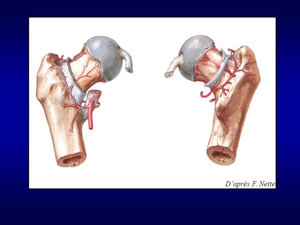 Vascularisation de la tête fragile, contrairement au col