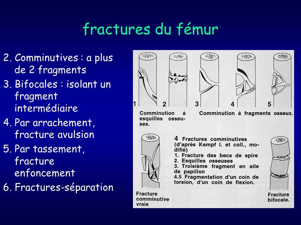 fractures du fémur 2. Comminutives : a plus de 2 fragments