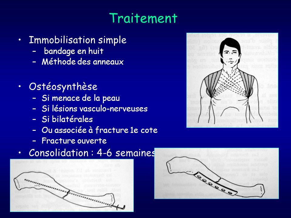 Traitement Immobilisation simple Ostéosynthèse