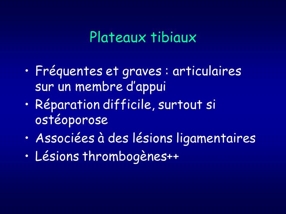 Plateaux tibiaux Fréquentes et graves : articulaires sur un membre d'appui. Réparation difficile, surtout si ostéoporose.