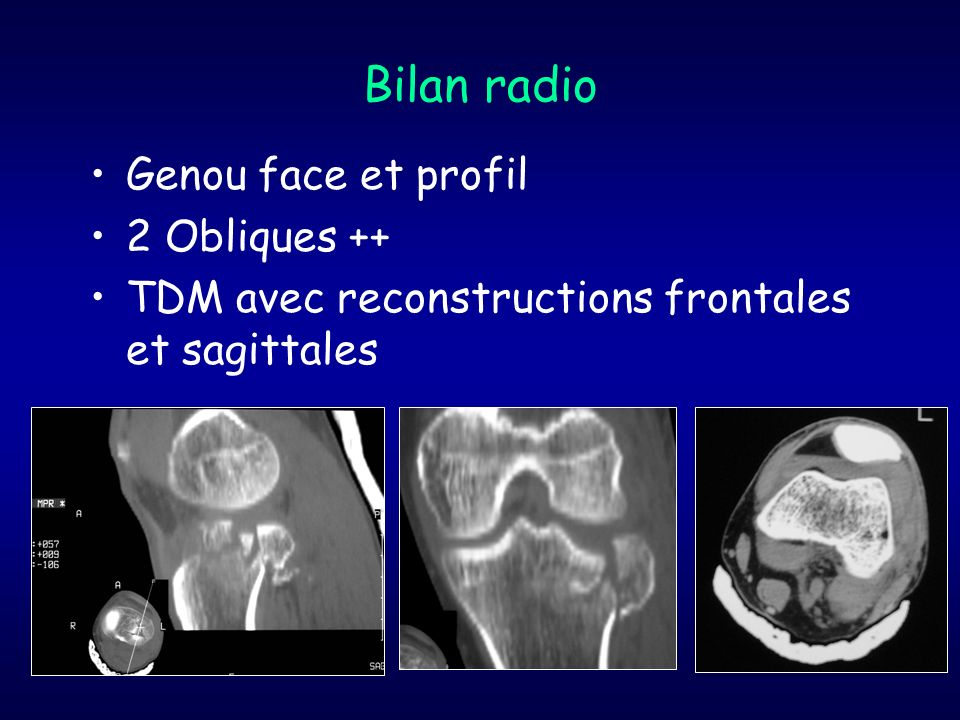 Bilan radio Genou face et profil 2 Obliques ++