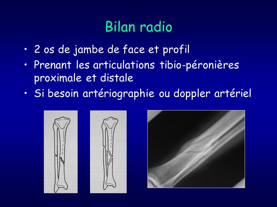 Bilan radio 2 os de jambe de face et profil