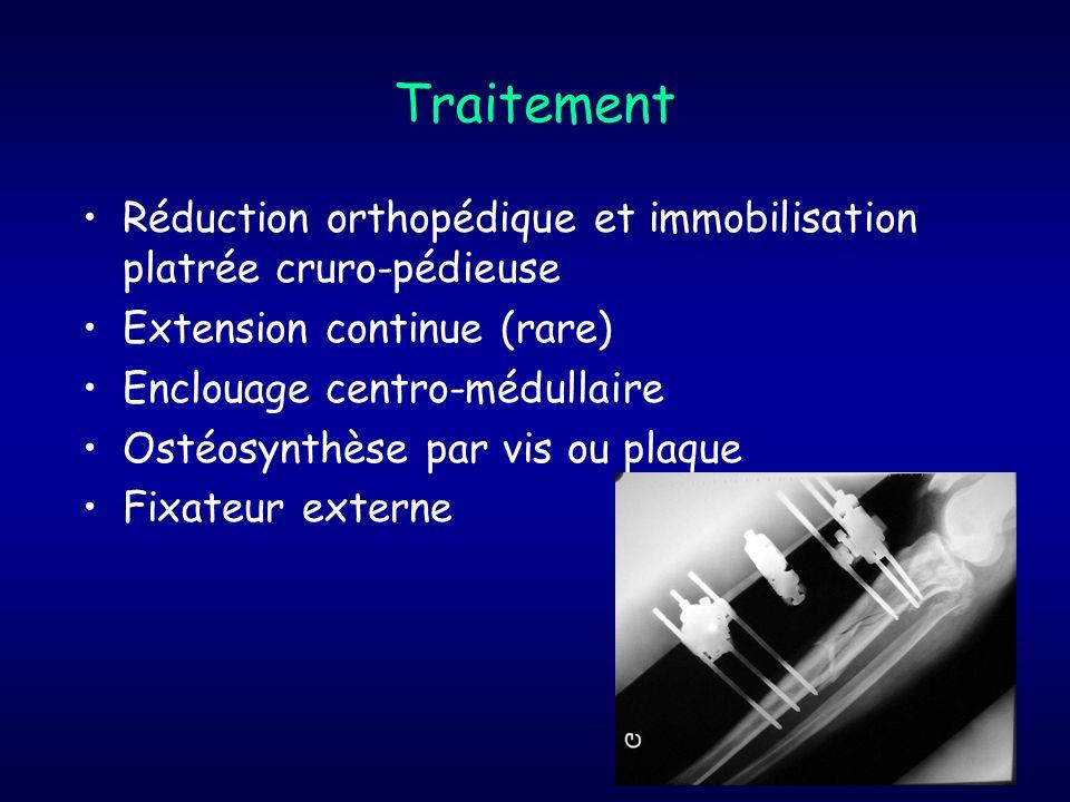 TraitementRéduction orthopédique et immobilisation platrée cruro-pédieuse. Extension continue (rare)