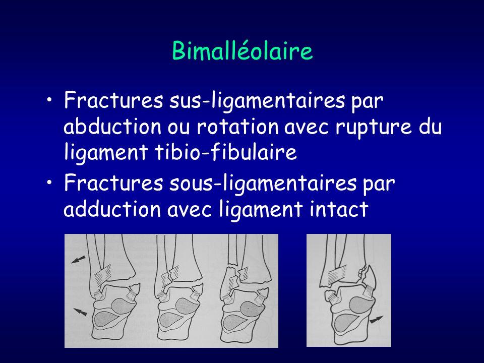 Bimalléolaire Fractures sus-ligamentaires par abduction ou rotation avec rupture du ligament tibio-fibulaire.