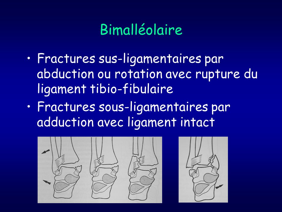 BimalléolaireFractures sus-ligamentaires par abduction ou rotation avec rupture du ligament tibio-fibulaire.
