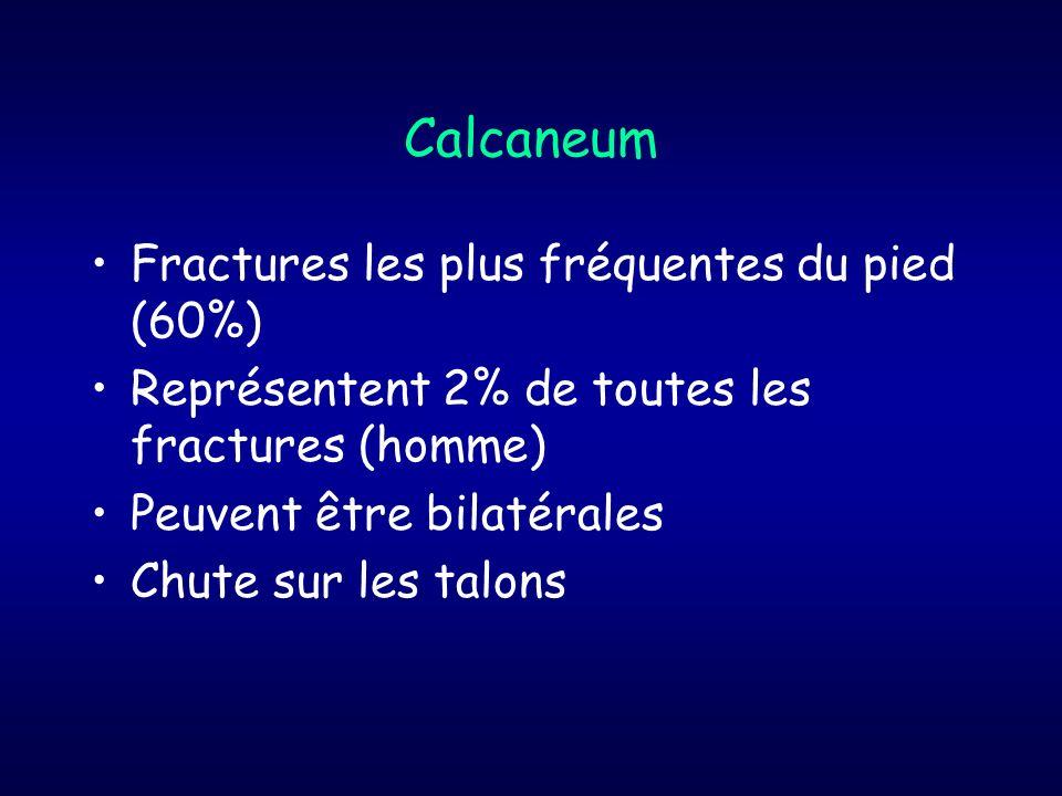 Calcaneum Fractures les plus fréquentes du pied (60%)