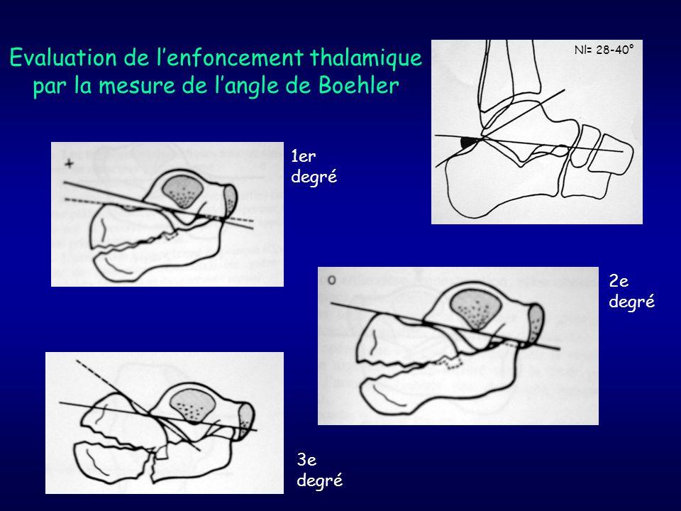 Evaluation de l'enfoncement thalamique par la mesure de l'angle de Boehler