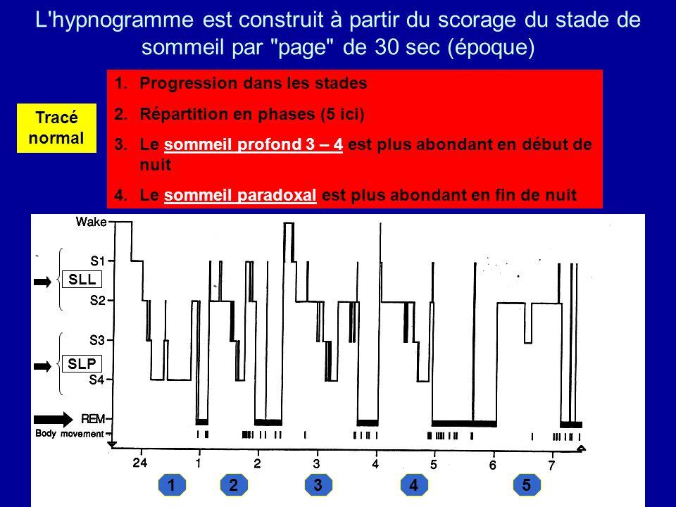 L hypnogramme est construit à partir du scorage du stade de sommeil par page de 30 sec (époque)