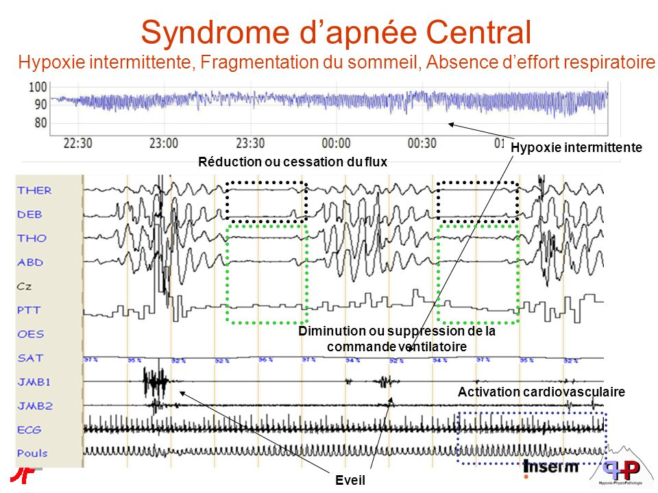 Syndrome d'apnée Central Hypoxie intermittente, Fragmentation du sommeil, Absence d'effort respiratoire
