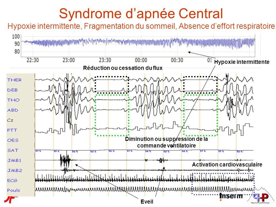 Syndrome d'apnée Central Hypoxie intermittente, Fragmentation du sommeil, Absence d'effort respiratoire