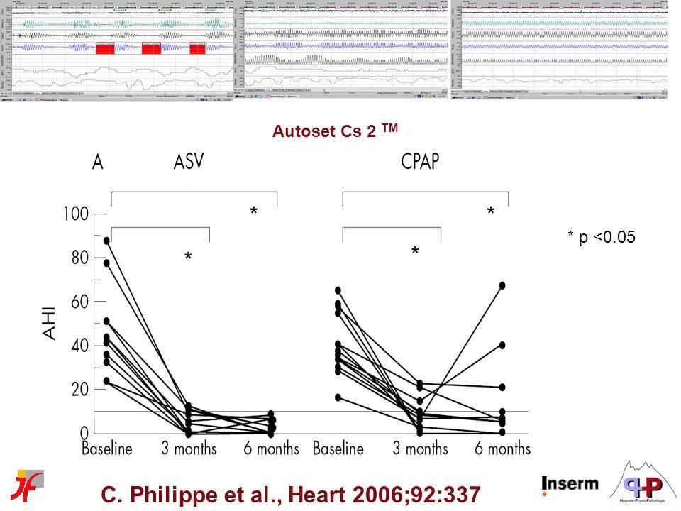 C. Philippe et al., Heart 2006;92:337