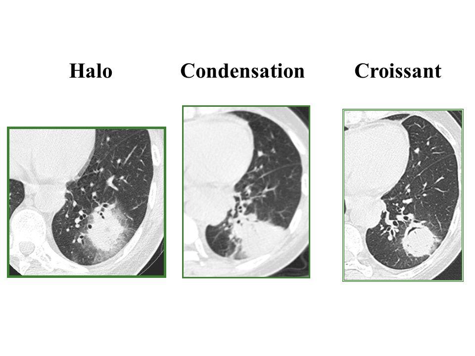 Halo Condensation Croissant