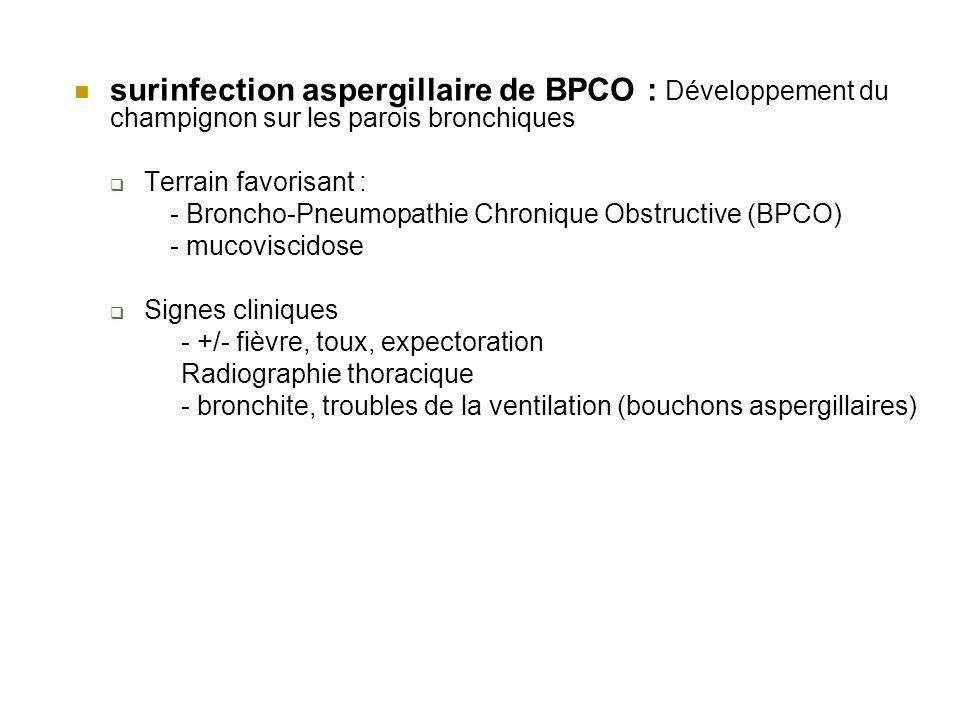 surinfection aspergillaire de BPCO : Développement du champignon sur les parois bronchiques