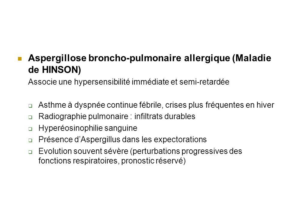 Aspergillose broncho-pulmonaire allergique (Maladie de HINSON)
