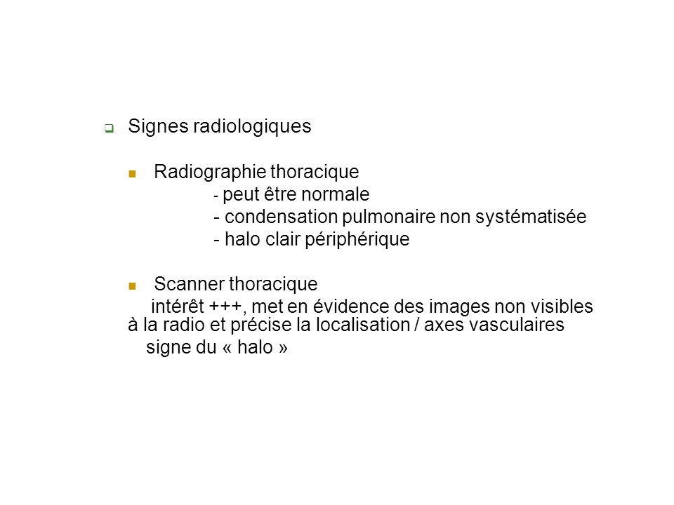 Signes radiologiques Radiographie thoracique